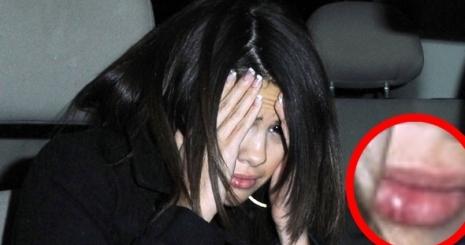 Megütötte Selena Gomezt egy Bieber-rajongó